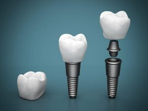 Dental Implants | Dentist Thornton