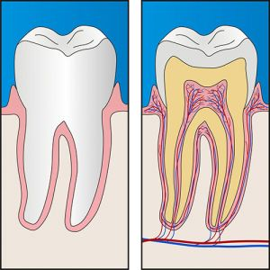 Root Canal Treatment | Dentist Thornton