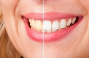 Teeth Whitening | Dentist Thornton
