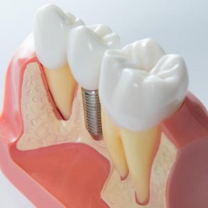 Dental Implants and Tooth Loss