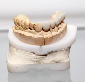 How Long Should a Dental Crown Last?