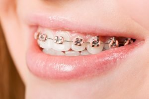Orthodontics | Dentist Thornton