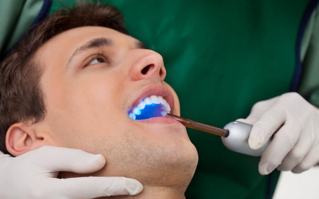 The Truth About Tooth Bonding – Fast And Efficient