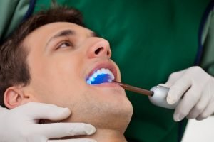 The Truth About Tooth Bonding Fast And Efficient