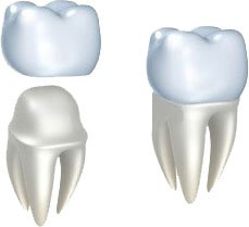 Lost Dental Crown or Inlays Onlays |n Dentist Thornton