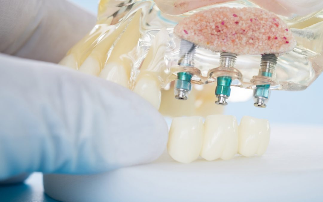 Dental Implants in Thornton: Should You Shop Around?