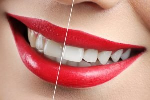 Thornton Dentist tips How to Whiten your Teeth