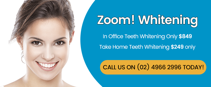 Zoom Whitening Banner Dentist Thornton